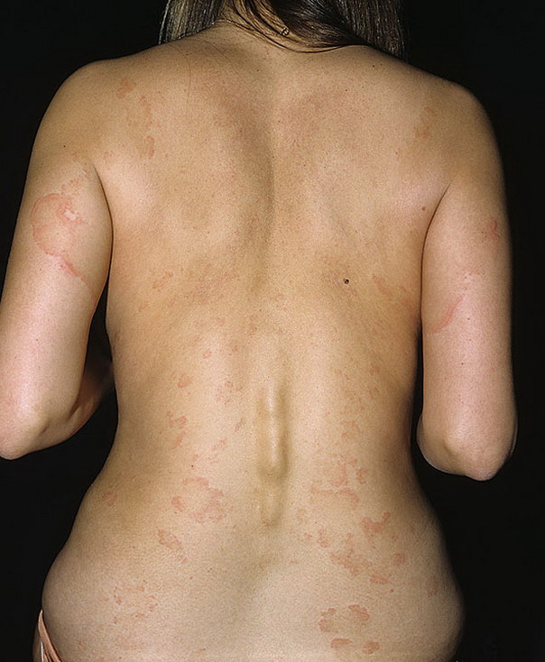 urticaria A urticaria (hives) is generally an allergic reaction, or an immune response to food or some other allergen, but can also appear for other reasons, notably emotional stress.