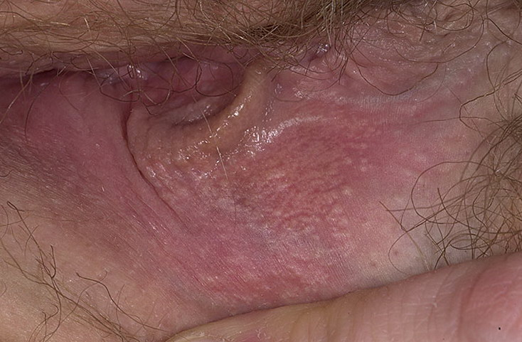 On vaginal lump area inner