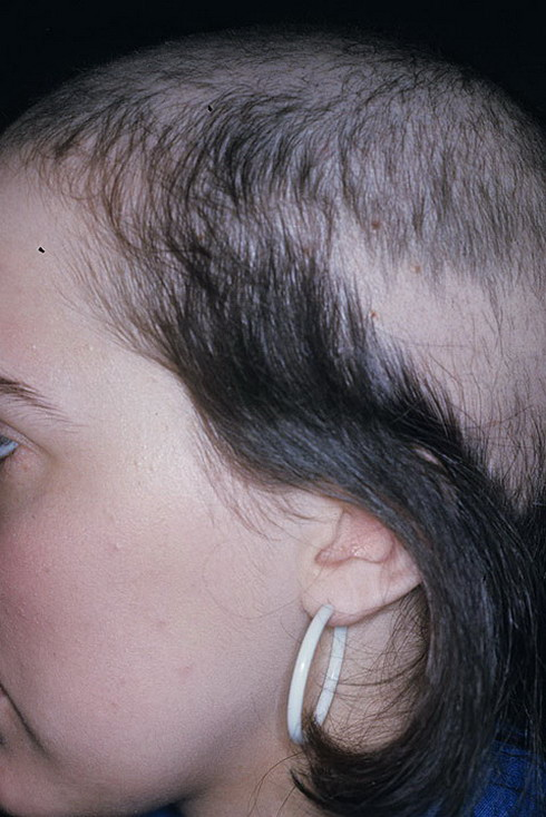 trichotillomania Hi, i'm rebecca welcome to my online journal about trichotillomania x.